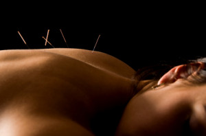 Acupuncture - Portland Naturopathic Doctor