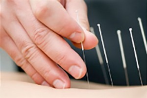 Acupuncture-and-Chinese-Medicine